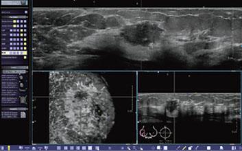 3D全自動乳房超音波